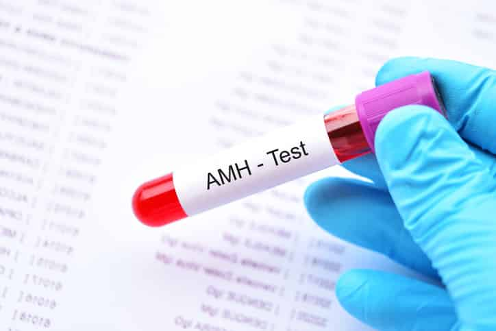 Análisis de la reserva ovárica: Hormona Antimulleriana