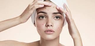 ¿Cómo tratar el acné en el embarazo?
