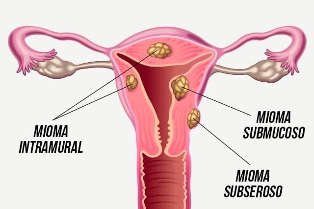 Fibroma uterino: causas, síntomas y tratamiento