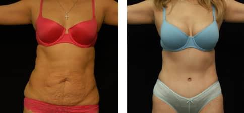 Mommy makeover: Cirugía estética después del embarazo