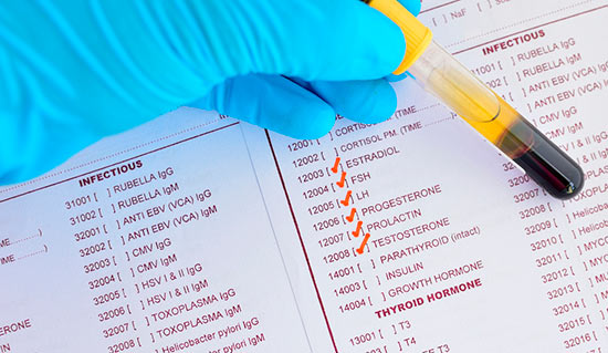 Prolactina alta e infertilidad: hiperprolactinemia